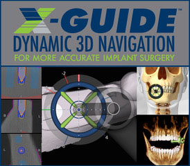 image of X Guide 1